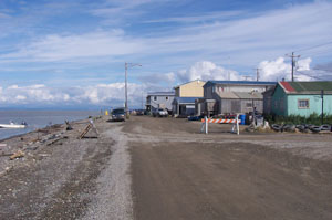 Alaska Targets An Old Foe: Tuberculosis