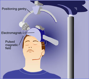 Is Magnetic Pulse Treatment An Answer For People Suffering From Drug-Resistant Depression?