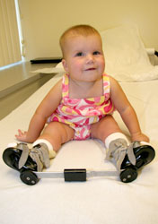 The Clubfoot Correction: How Parents Pushed For A Better Treatment